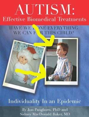 Autismeffectivebiomedical